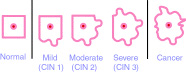 Diagram explaining the progression of precancerous cells to cancer